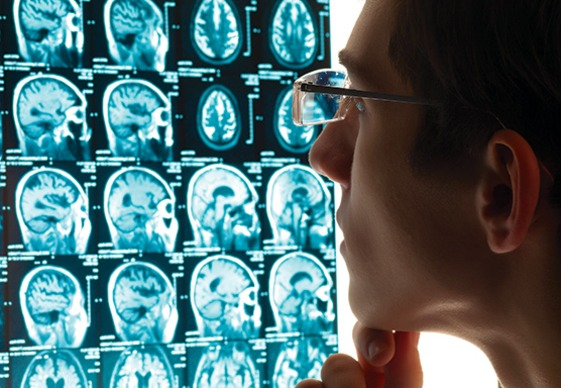 photo: doctor looking at brain x-rays